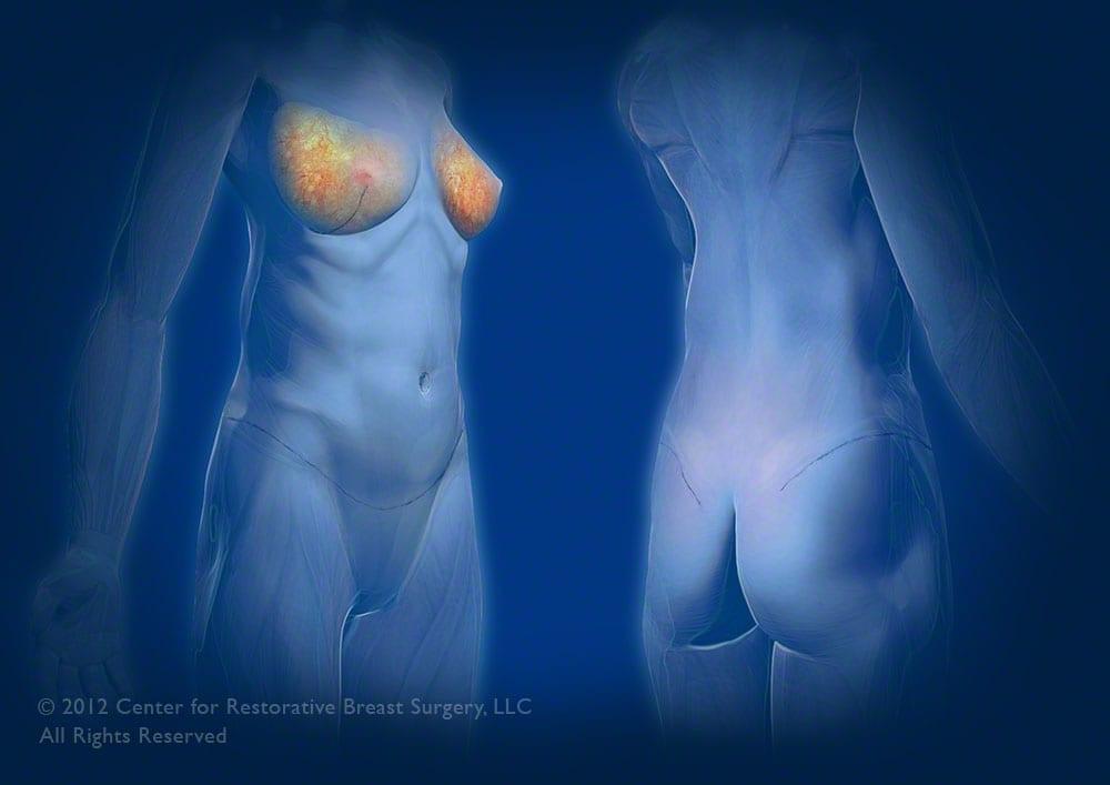 lumpectomy-1